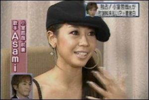 小室哲哉の前妻・吉田麻美