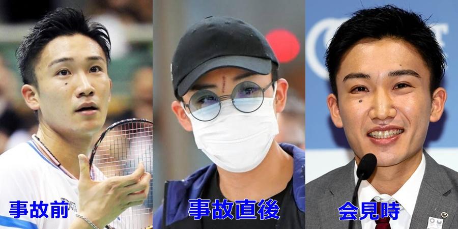 【比較画像】桃田賢斗選手の顔の変遷